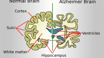 reconnaître maladie d'Alzheimer