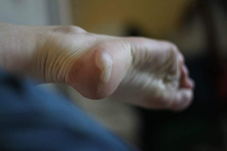 Ampoule pied