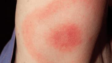maladie de Lyme tiques
