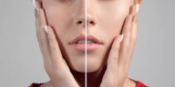 pores peau
