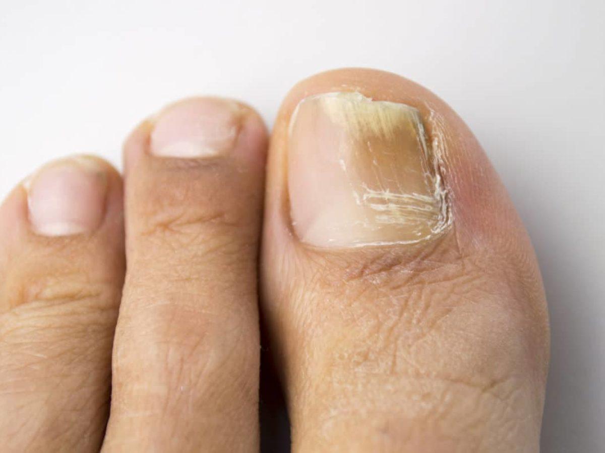 petite tache noire ongle pied