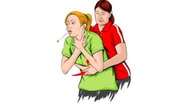 La méthode d'Heimlich