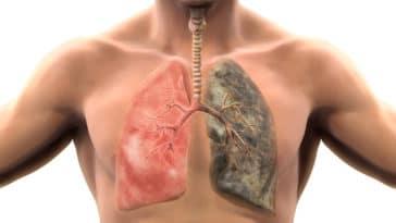 fumeur Docteur Tamalou