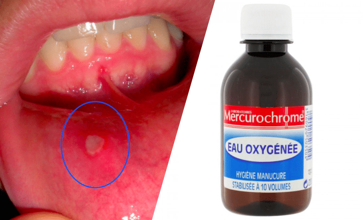 remède naturel bouche