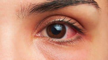 yeux qui piquent et démangent