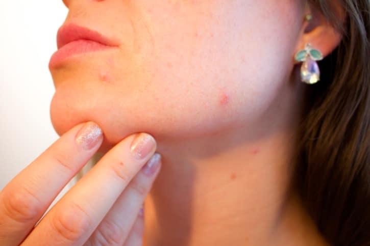 نتيجة بحث الصور عن adulte acné