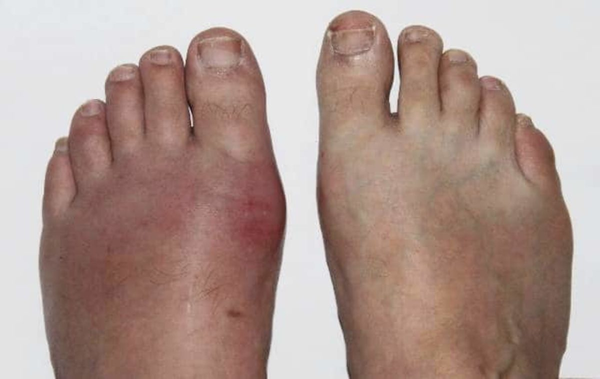 la goutte au pied