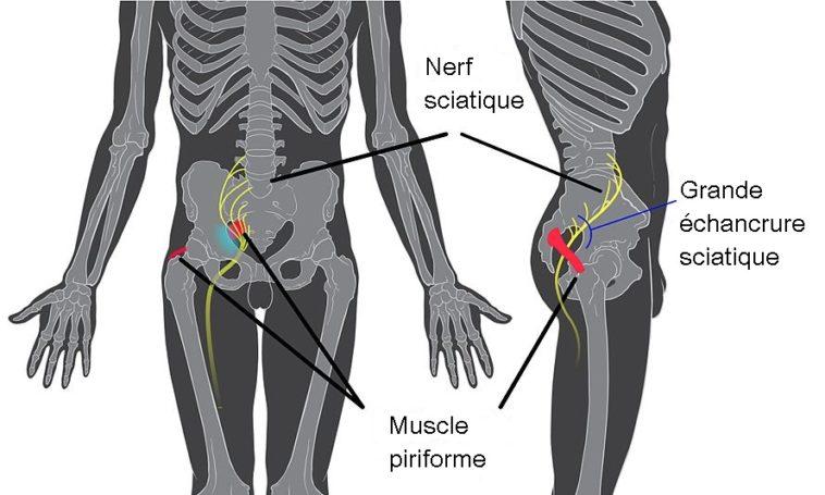 Piriforme syndrome