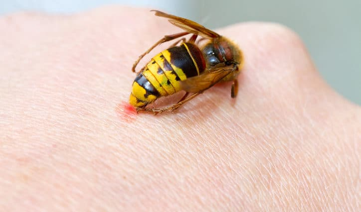piqûre d'abeilles, de guêpes et de frelon
