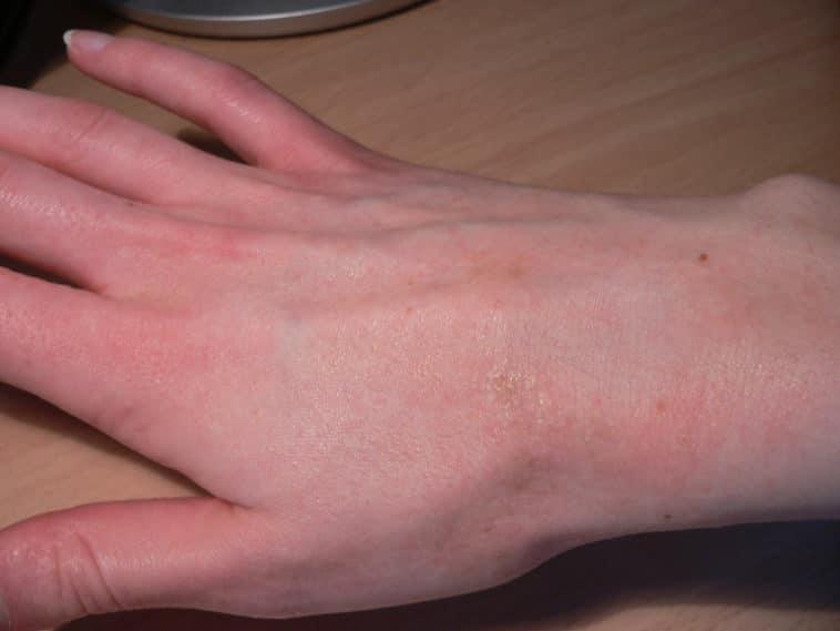 main infectée maladie gale