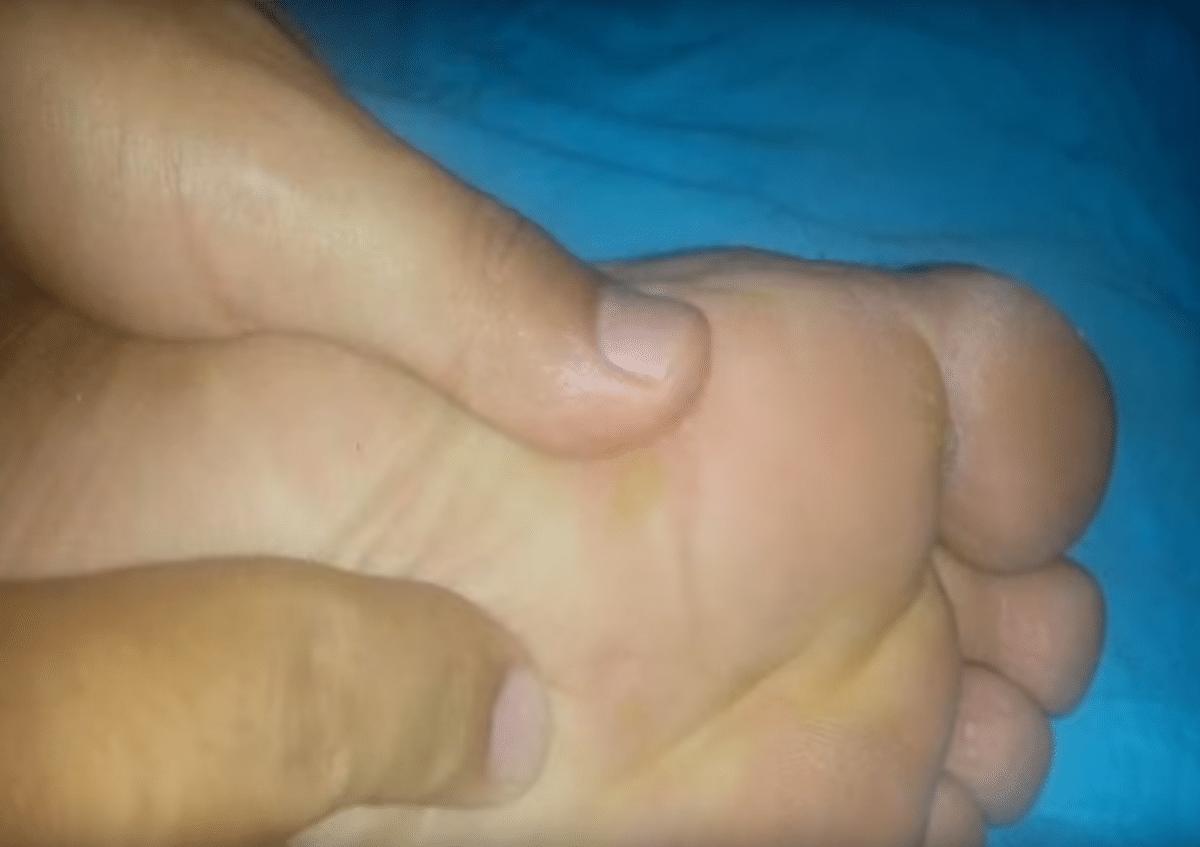 comment soigner durillon voute plantaire