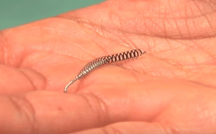 essure implant