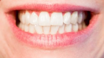 bouche dents blanches caries