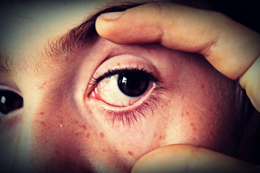oeil troubles