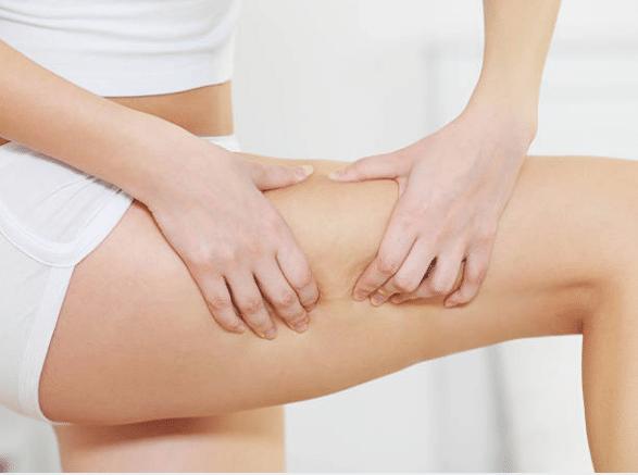 Cellulite remèdes naturels Docteur Tamalou