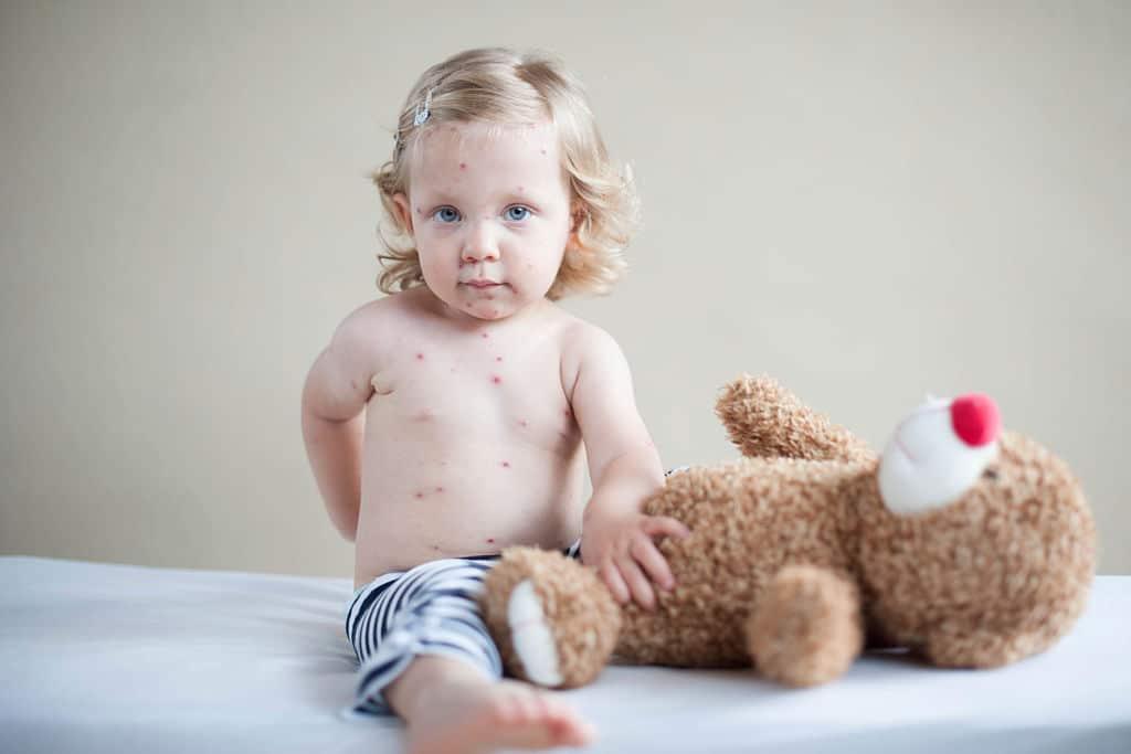 rougeole enfant malade Docteur Tamalou