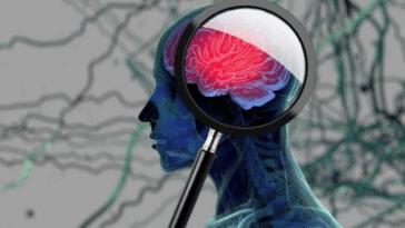 tumeur cerveau
