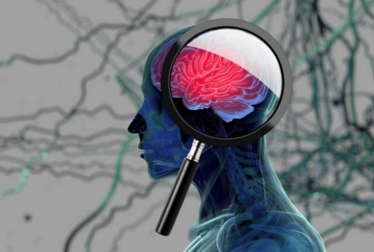 recherche de tumeur dans le cerveau