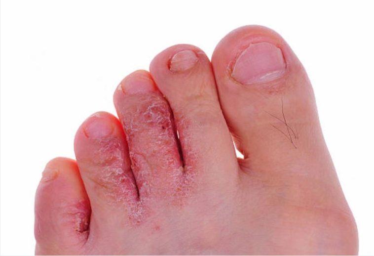 pied d'athlète causes symptômes traitements naturels