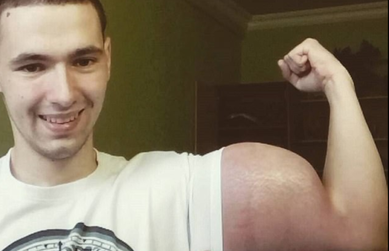 synthol muscles danger