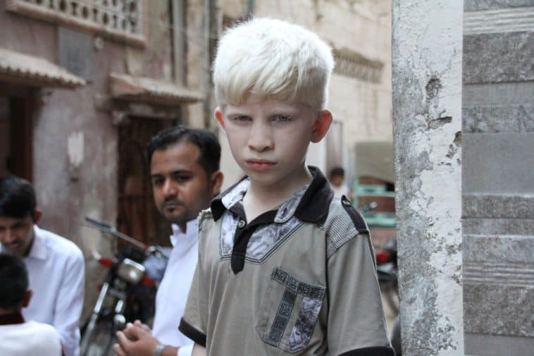 albinisme-Pixabay_babbur