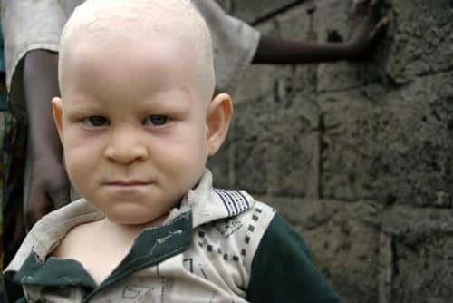 albinisme_Radio Okapi