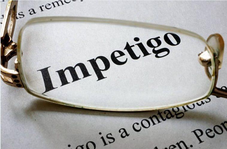 impétigo designer491 iStock