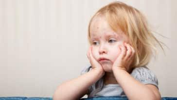 varicelle-enfant-malade-rentrée