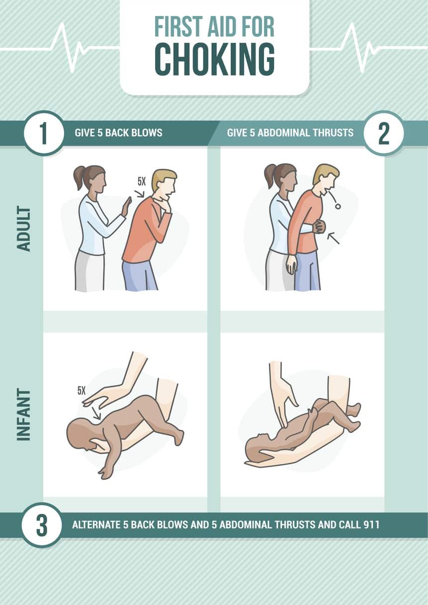 Heimlich-methode