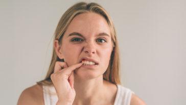 gingivite-dent-sang