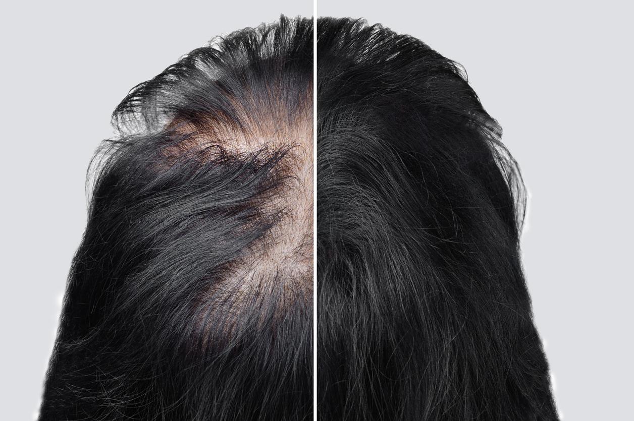 greffe-cheveux-chauve-calvitie
