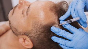 operation-greffe-cheveux-calvitie