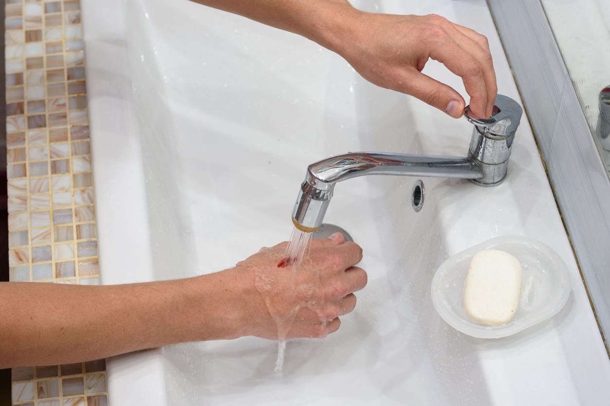 eau-brulure-rincage