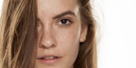femme-acne