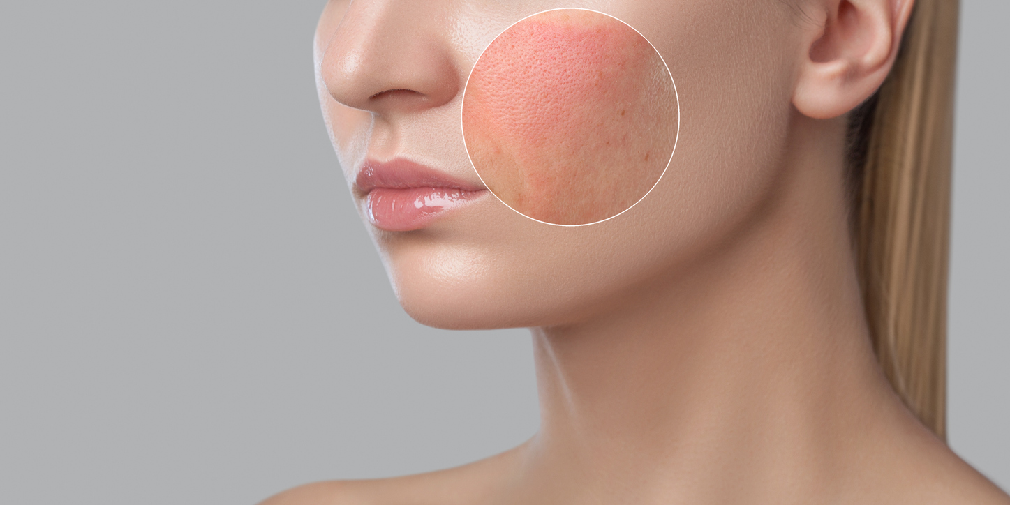 peau-maquillage-dissolvant