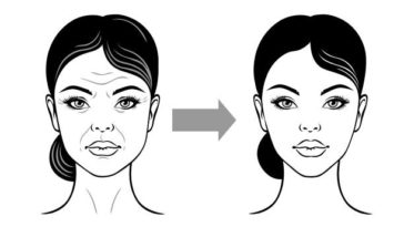 Woman face before and after facelift, anti-aging. Vector illustration on a white background.