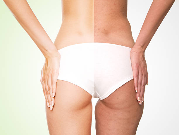 Close-up of a female body from behind divided in two parts: one is perfectly shaped and well retouched, other is deformed and retouched to show skin problems.