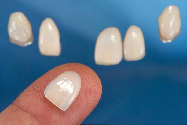 Dental veneers with one veneer on hand finger, closeup photo with blue background. Selective focus.