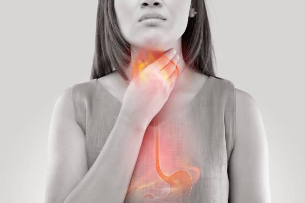 reflux gastriques
